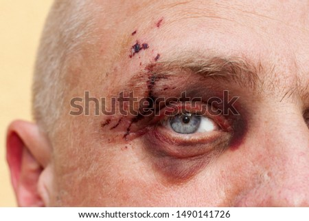 Male eye with a large purple bruise. Biting dog on face. Eye injury. Large bruising on the male eye. Treatment of injuries. Boxer eye.