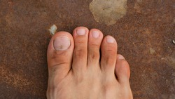 Male Foot with second toe longer than a big toe. Mortons's toe, Greek foot or Royal toe or Aboriginal feet.