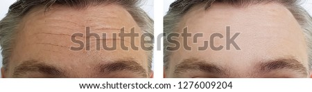 male forehead wrinkles before and after procedures Stock photo ©
