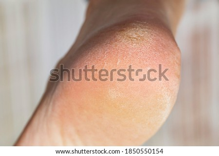 Male hardware pedicure in the salon. Photo series. First part: cracked and dirty foot and heel before treatment. Foto stock ©