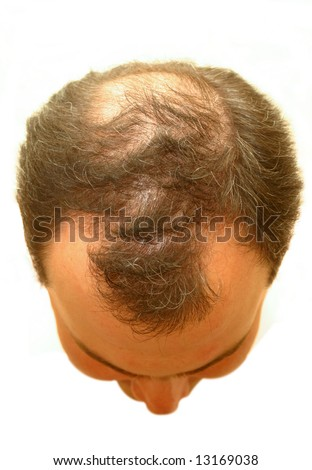 Male Head With Hair Loss Symptoms Stock Photo 13169038 : Shutterstock