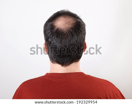 how to tell if hair is thinning male