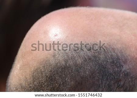 Male pattern baldness. Increased testosterone disease.