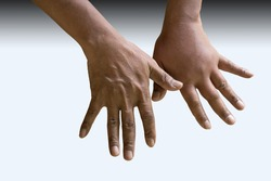 Male person showing swollen knuckles on left hand, with clipping path
