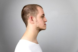 Malocclusion, man in profile. Wrong bite: lower jaw extended forward and retracted. Bite correction with braces. Young man in profile