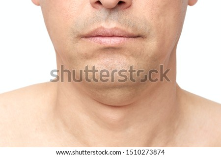 Man a double fat chin, a problem with a hanging chin with white background Foto stock ©