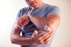 Man applies cream on dry elbow.People, healthcare and medicine concept