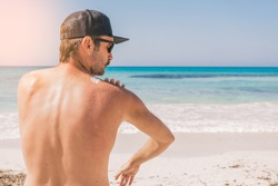 Man applying sun protection cream on his shoulder at the beach. Skin care concept.