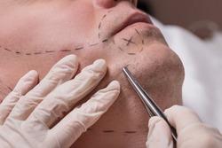 Man beauty procedure beard hair implant for senior man