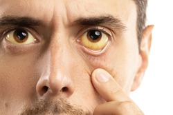 Man checking his health condition. Yellowish eyes is sign of problems with liver, viral infection or other disease.