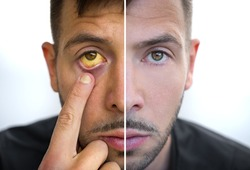 Man face divided into two parts one healthy and one unhealthy. Yellowish eyes and skin. Bad habits vs good habits. Jaundice, hepatitis, cirrhosis, liver failure. Risk factors of alcohol drinking