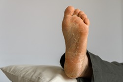Man foot extreme skin exfoliation. Left foot on the pillow with white background. flaky itchy skin