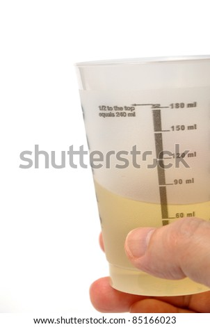 Man holding urine sample in a medical container