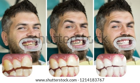 Man isolated on white teeth: before and after concept. Stomatology concept - close up of female dentist with male patient teeth. White teeth or yellow