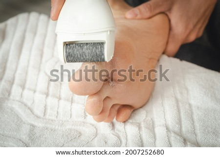 man removes dry skin on his feet at home with an electric callus remover.  Stockfoto ©