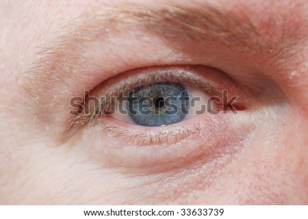 man\'s blue eye  with contact lines and wrinkles skin close up.