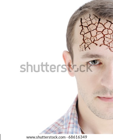 Man's head, isolated on white, half-faced, dry forehead skin, conceptual photo
