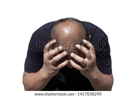 man thin hair. Men have hair problems.Concept hair problem from stress Problems from the scalp