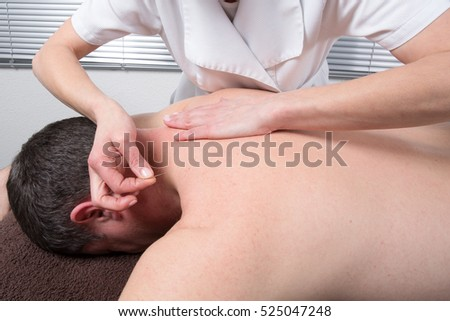 Man Undergoing Acupuncture Treatment #525047248
