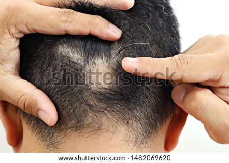 Man with alopecia areata on head. Spot Baldness. Male alopecia or hair loss concept.