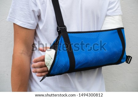 Arm in Plaster Cast Images and Stock Photos - Avopix com
