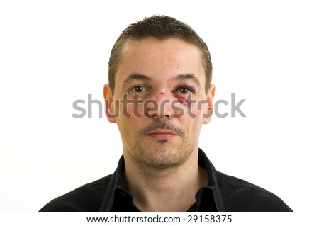 man with broken, crooked nose and black eye isolated on white