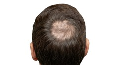 Man with hair loss problems closeup, isolated. Alopecia balding hairs on man scalp. Human alopecia or hair loss - person hand pointing his bald head. Scratching his head. Baldness. Depression, stress
