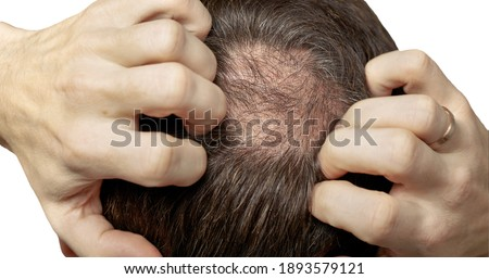 Man with hair loss problems closeup, isolated. Alopecia balding hairs on man scalp. Human alopecia or hair loss - person hand pointing his bald head. Scratching his head. Baldness. Depression, stress Stock photo ©
