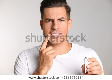 Man with herpes applying cream on lips against light grey background Foto stock ©