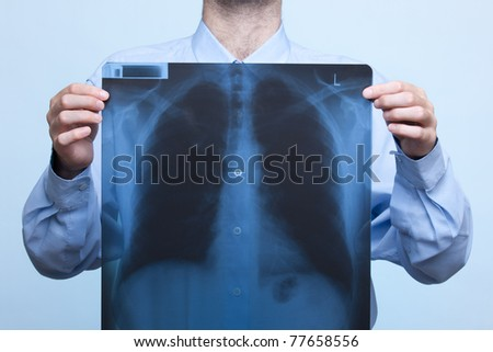 Man with his bellows (chest) x-ray, focused on x-ray