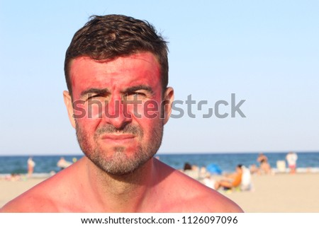 Man with lost of redness after suntanning #1126097096