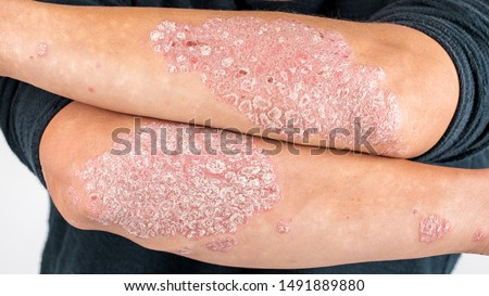 Man with sick hands, dry flaky skin on his hand with vulgar psoriasis, eczema and other skin diseases such as fungus, plaque, rash and blemishes. Autoimmune genetic disease.