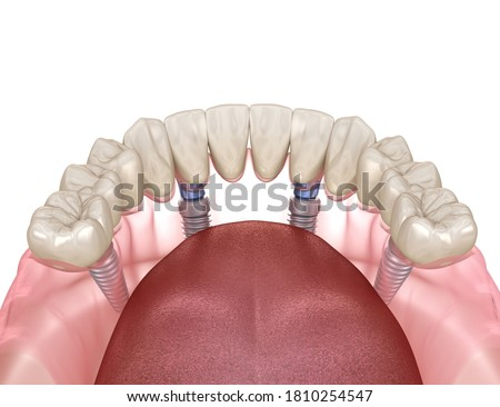 Mandibular prosthesis All on 4 system supported by implants. Medically accurate 3D illustration of human teeth and dentures concept Сток-фото ©