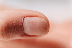 Manicure process. The uneven surface of the nail on the thumb after grinding.