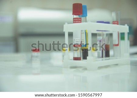many test tubes with blood being tested