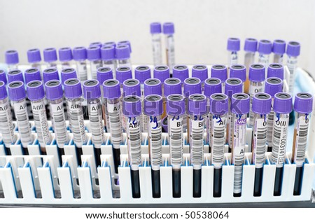 many test tubes with donor blood being tested