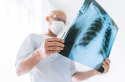 Mature Male doctor examining the patient chest x-ray film lungs scan at radiology department in hospital. Scan close up. Covid-19 scan body xray test detection for covid worldwide virus spread concept