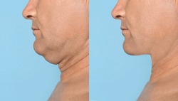 Mature man before and after plastic surgery operation on blue background, closeup. Double chin problem