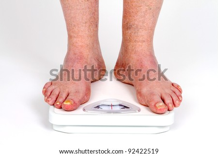 Mature man's feet on scale as he takes his weight measurement with toe fungus disease.