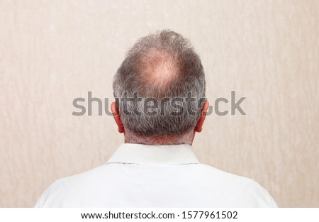 Mature office worker with balding head