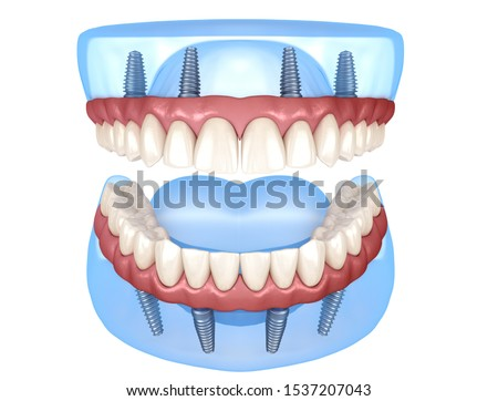 Maxillary and Mandibular prosthesis with gum All on 4 system supported by implants. Medically accurate 3D illustration of human teeth and dentures Сток-фото ©