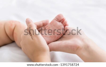Measles virus. Mother holding tiny baby foot with red rash, closeup
