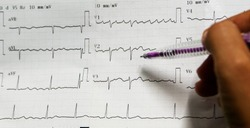 Medical concept, doctor is looking on ecg paper report of the patient in emergency room in hospital.