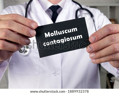 Photo of  Medical concept meaning Molluscum contagiosum with inscription on the page.