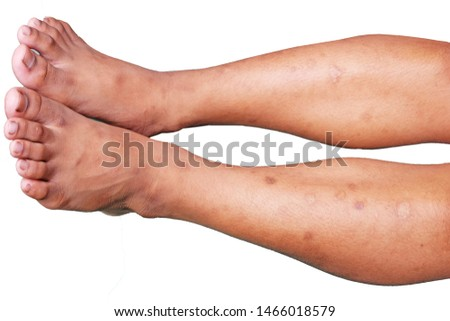 Medical conditions, skin condition, leg dermatitis.clipping path.
