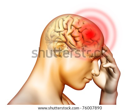 Medical illustration about pain located in the head area. Digital illustration. - stock photo