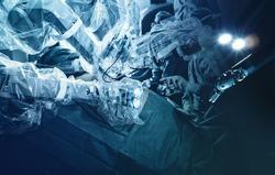 Medical robotic surgical arm, surgeon medical robot davinci surgery technology machine.Robotic surgery for neurosurgery medical robotic futuristic health care medicine. Minimally invasive microsurgery
