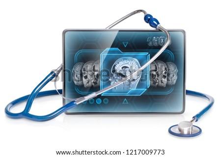 Medical tablet displaying brain MRI scan #1217009773