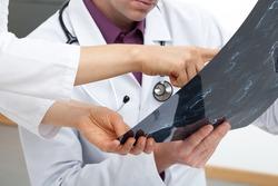 Medical team analysing a human brain scan