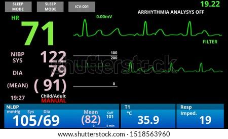 Medical vital signs monitor, cardio sensor patient health condition diagnostic